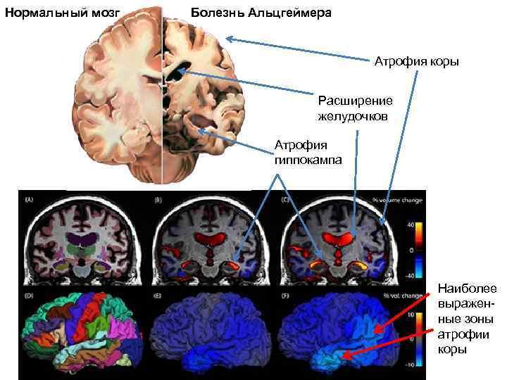 Нормальный мозг  Болезнь Альцгеймера     Атрофия коры