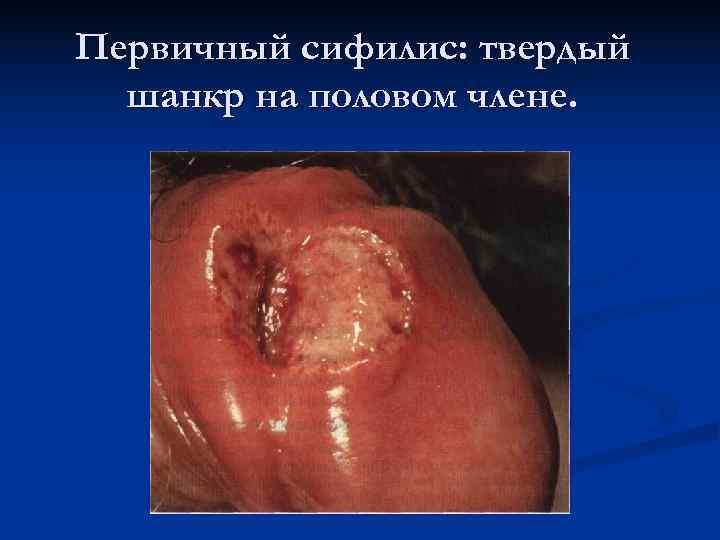 Первичный сифилис: твердый  шанкр на половом члене.