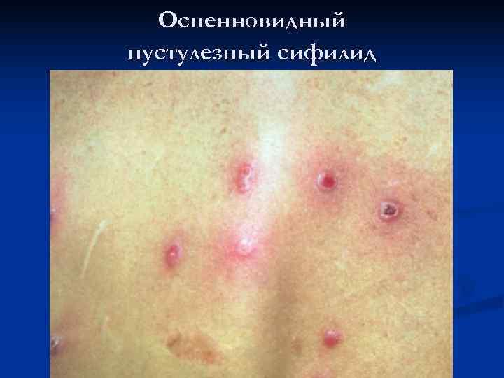 Оспенновидный пустулезный сифилид