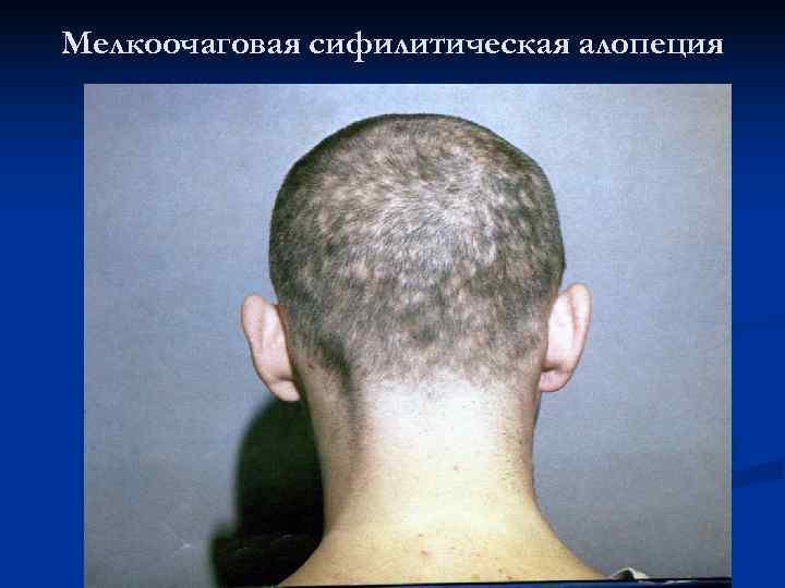 Мелкоочаговая сифилитическая алопеция