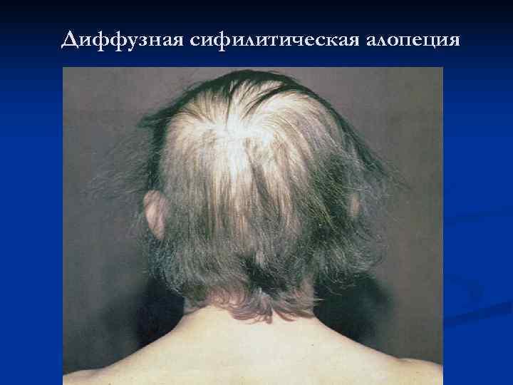 Диффузная сифилитическая алопеция