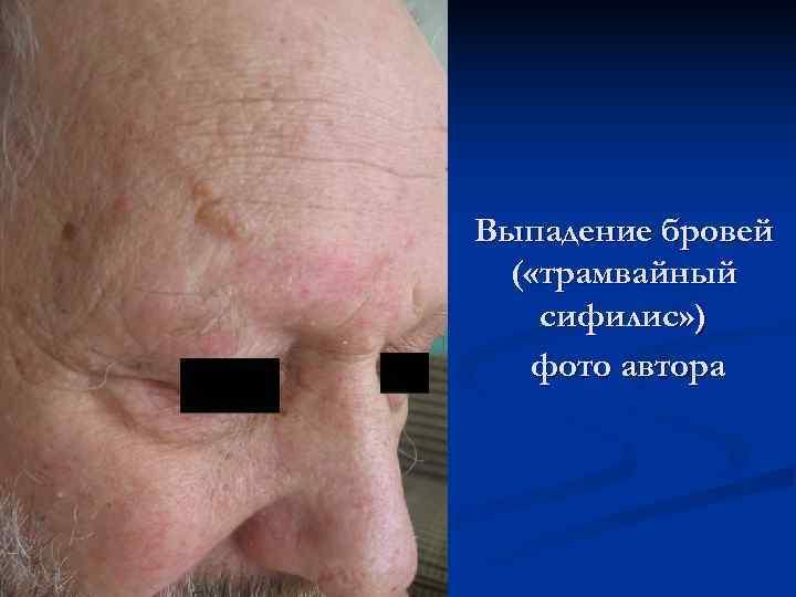 Выпадение бровей ( «трамвайный  сифилис» )  фото автора
