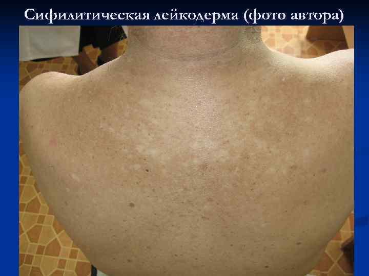 Сифилитическая лейкодерма (фото автора)