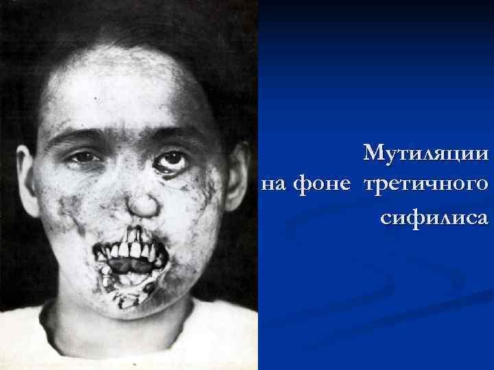 Мутиляции на фоне третичного   сифилиса