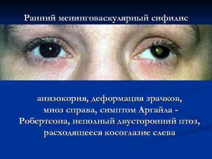 Ранний менинговаскулярный сифилис   анизокория, деформация зрачков,  миоз справа, симптом Аргайла