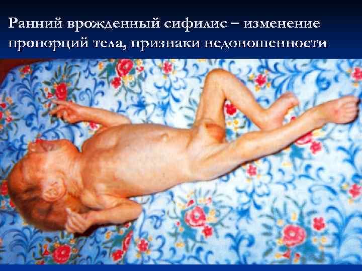 Ранний врожденный сифилис – изменение пропорций тела, признаки недоношенности