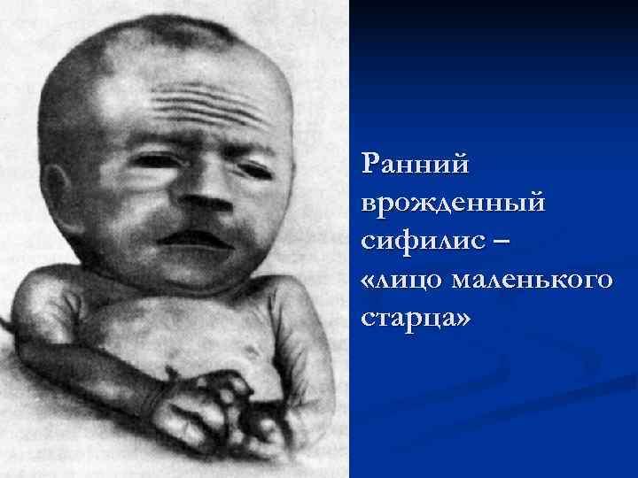 Ранний врожденный сифилис – «лицо маленького старца»