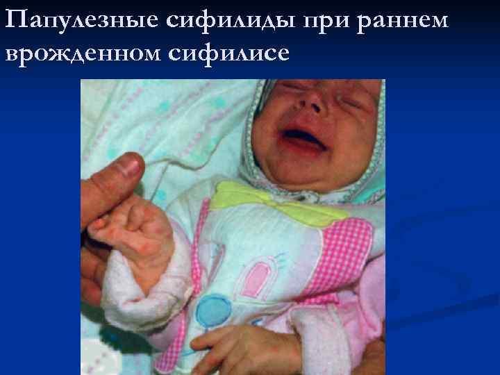 Папулезные сифилиды при раннем врожденном сифилисе