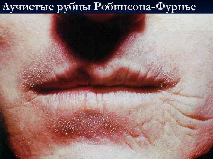 Лучистые рубцы Робинсона-Фурнье