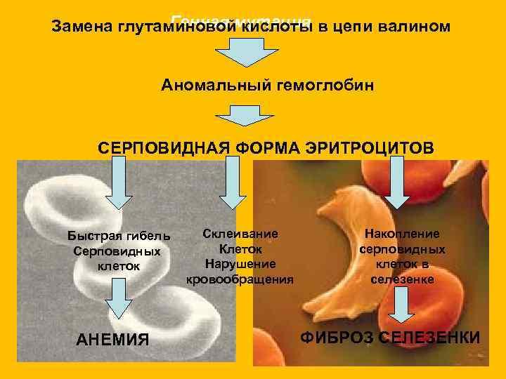Замена глутаминовоймутация в цепи валином   Генная кислоты    Аномальный гемоглобин