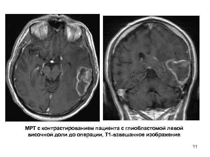 МРТ с контрастированием пациента с глиобластомой левой  височной доли до операции, Т 1