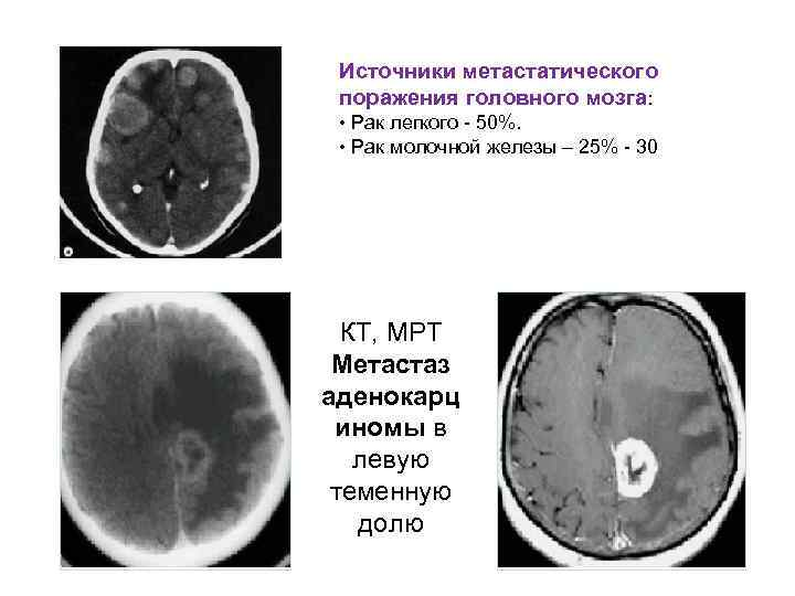 Источники метастатического  поражения головного мозга:  • Рак легкого  50%.