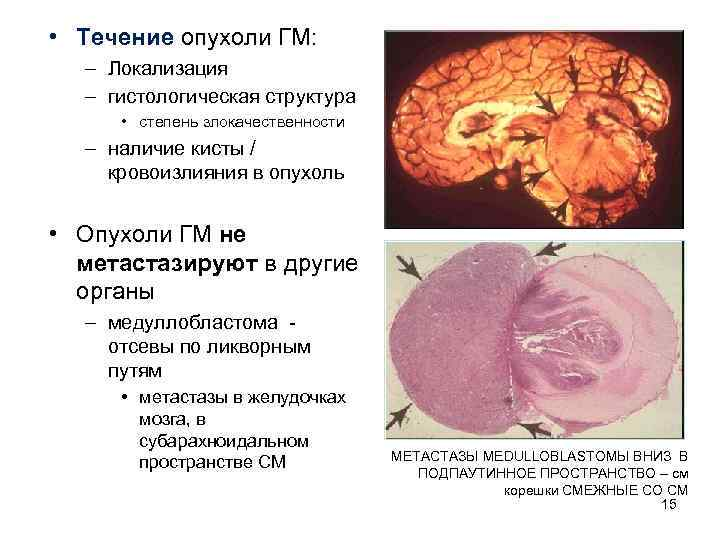 • Течение опухоли ГМ: – Локализация  – гистологическая структура  • степень