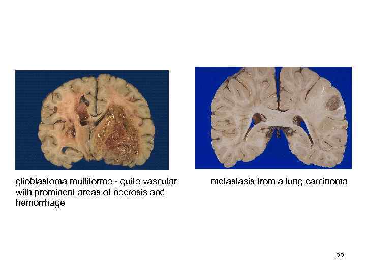 glioblastoma multiforme  quite vascular  metastasis from a lung carcinoma with prominent areas