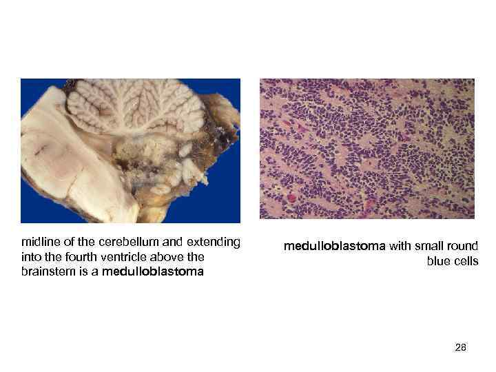 midline of the cerebellum and extending  medulloblastoma with small round into the fourth