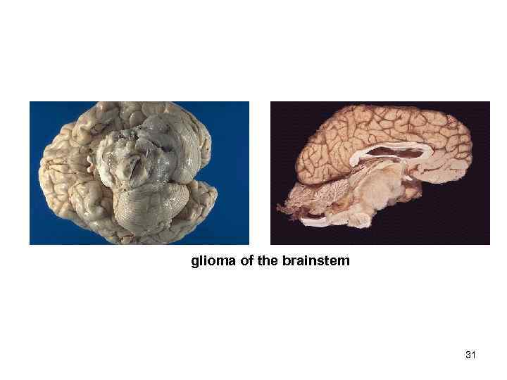 glioma of the brainstem      31