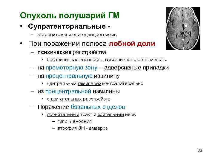 Опухоль полушарий ГМ • Супратенториальные -  – астроцитомы и олигодендроглиомы • При поражении