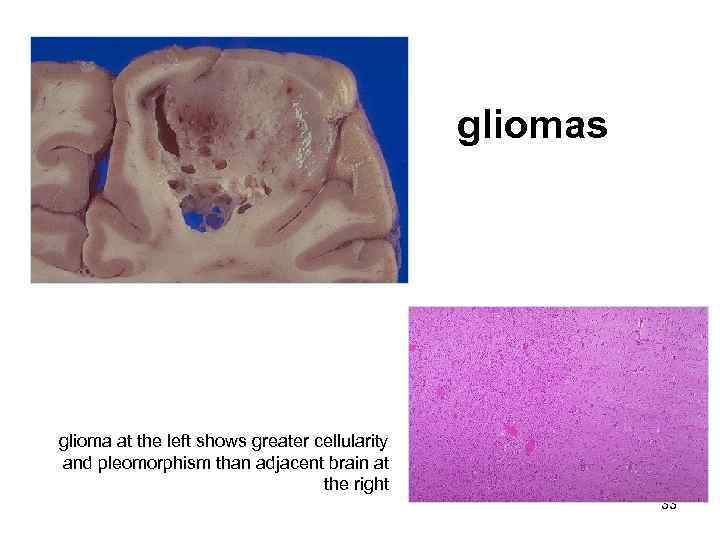 gliomas glioma at the left shows greater cellularity and pleomorphism