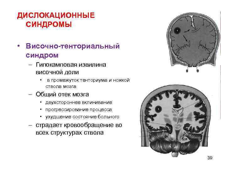 ДИСЛОКАЦИОННЫЕ  СИНДРОМЫ  • Височно-тенториальный  синдром  – Гипокамповая извилина височной доли