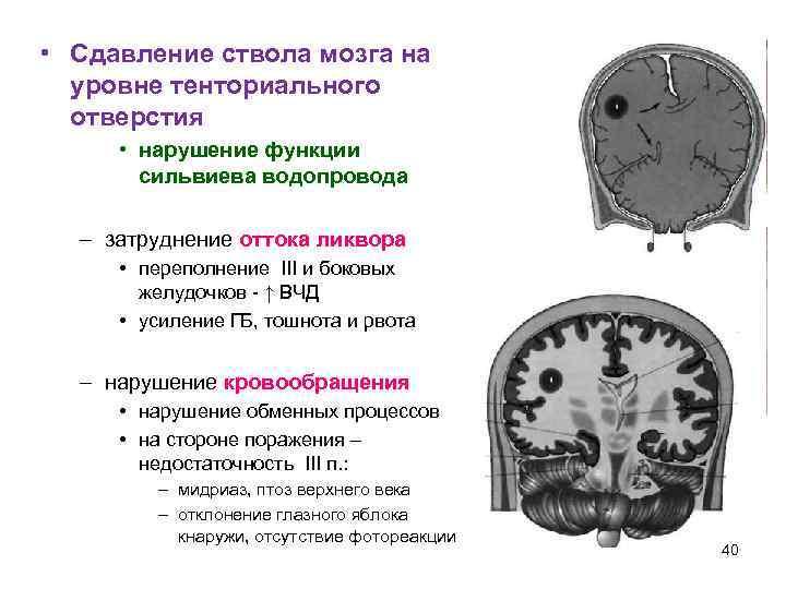 • Сдавление ствола мозга на  уровне тенториального  отверстия  • нарушение