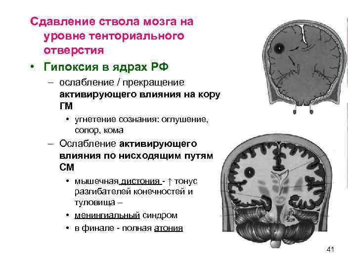 Сдавление ствола мозга на  уровне тенториального  отверстия • Гипоксия в ядрах РФ