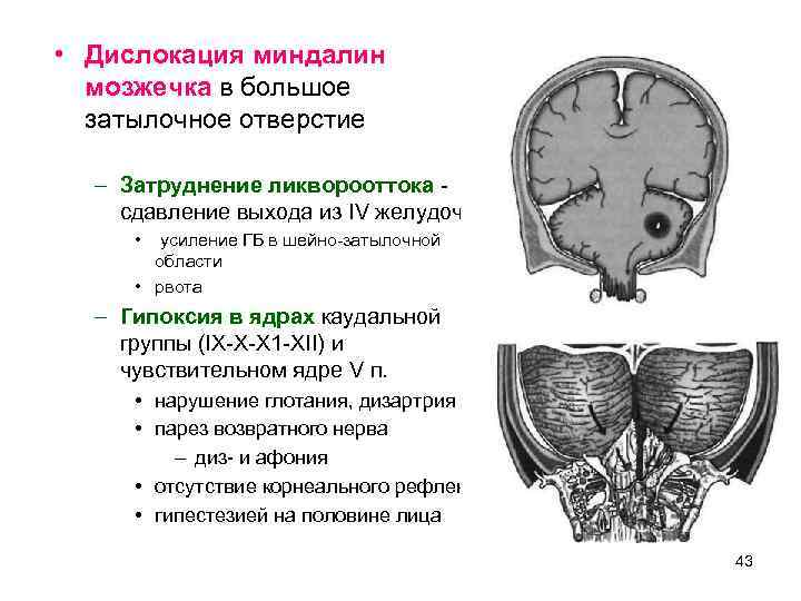 • Дислокация миндалин  мозжечка в большое  затылочное отверстие  – Затруднение