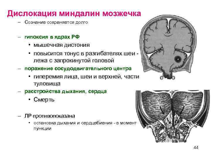 Дислокация миндалин мозжечка  – Сознание сохраняется долго – гипоксия в ядрах РФ