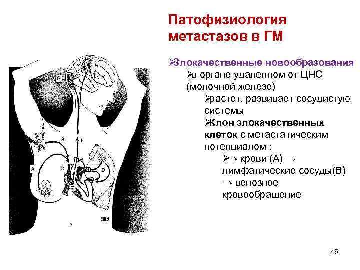Патофизиология метастазов в ГМ ØЗлокачественные новообразования Øв органе удаленном от ЦНС (молочной железе)