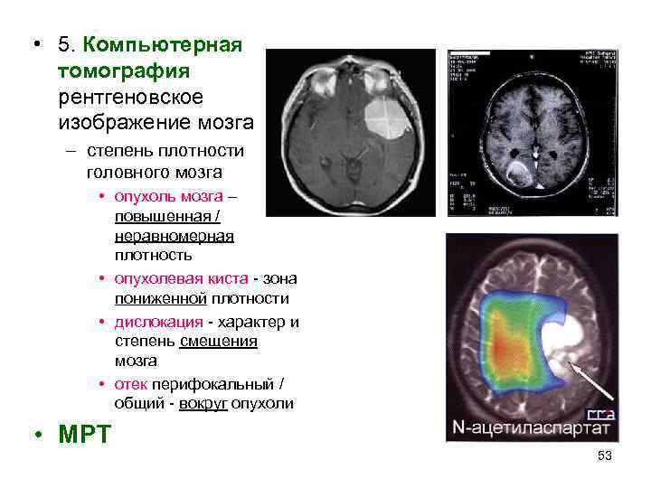 • 5. Компьютерная  томография  рентгеновское  изображение мозга  – степень
