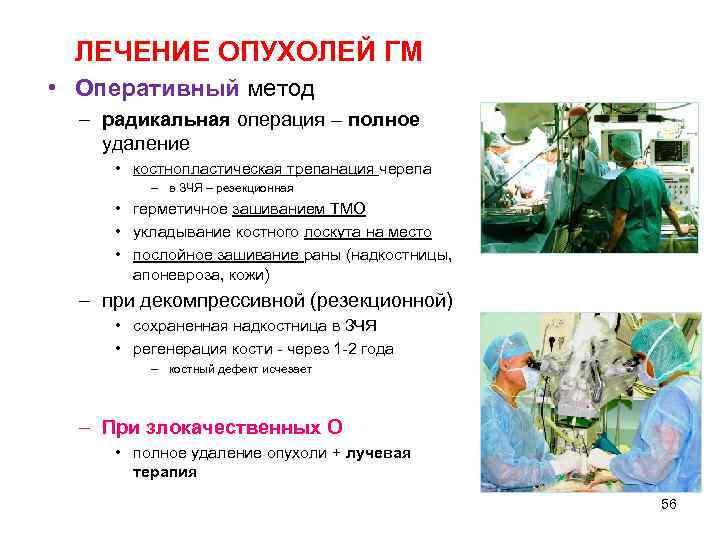 ЛЕЧЕНИЕ ОПУХОЛЕЙ ГМ • Оперативный метод  – радикальная операция – полное удаление