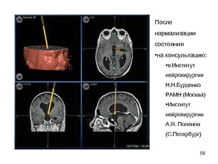 После нормализации состояния  • на консультацию:  • в Институт нейрохирургия Н. Н.