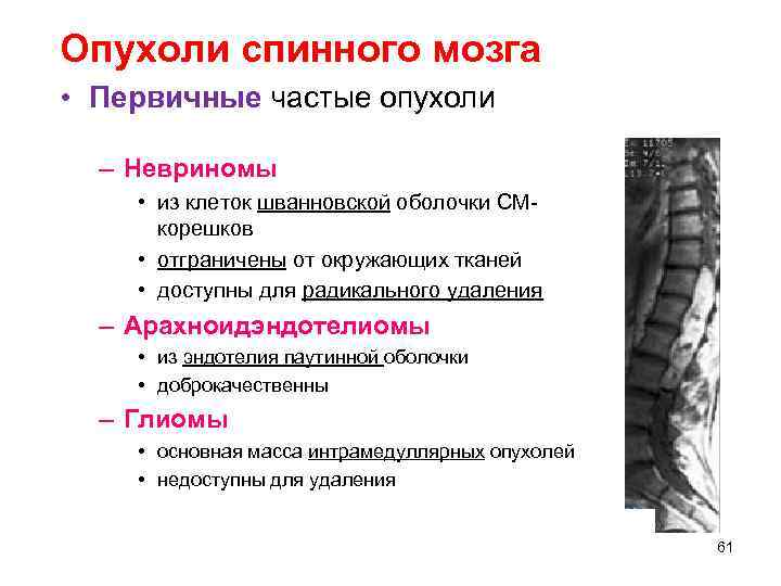 Опухоли спинного мозга • Первичные частые опухоли  – Невриномы  • из клеток