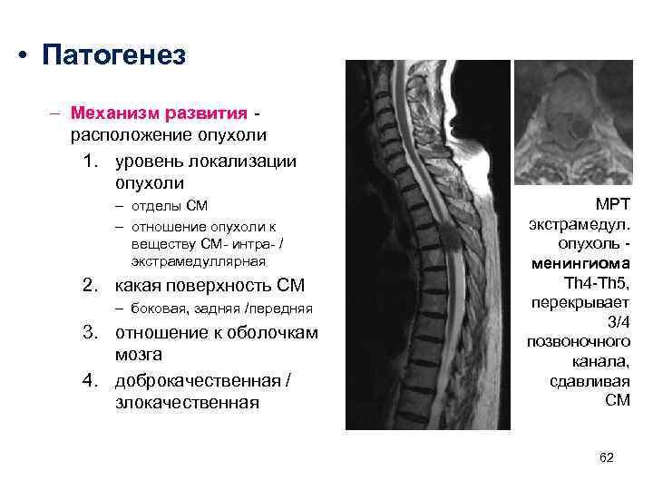 • Патогенез  – Механизм развития  расположение опухоли  1. уровень локализации