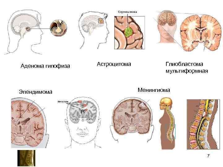 Аденома гипофиза  Астроцитома  Глиобластома    мультиформная  Эпендимома