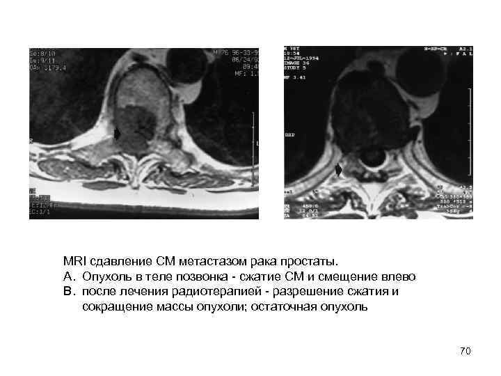 MRI сдавление СМ метастазом рака простаты.  A. Опухоль в теле позвонка  сжатие