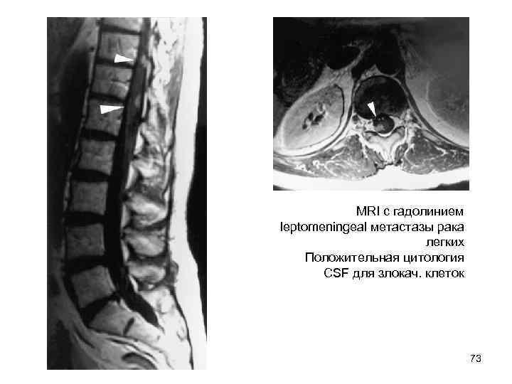 MRI с гадолинием leptomeningeal метастазы рака     легких Положительная