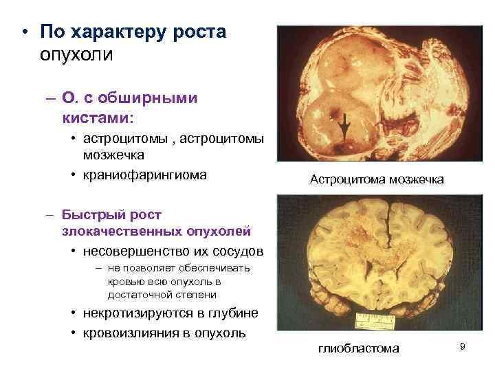• По характеру роста  опухоли  – О. с обширными кистами: