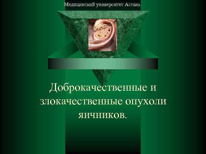Медицинский университет Астана  Доброкачественные и злокачественные опухоли   яичников.