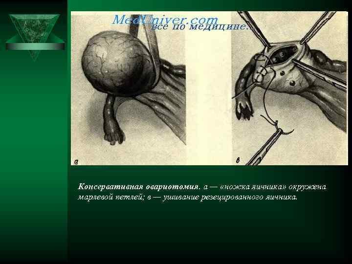 Консервативная овариотомия. а — «ножка яичника» окружена марлевой петлей; в — ушивание резецированного яичника.