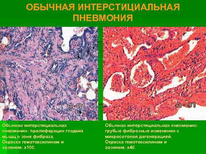 ОБЫЧНАЯ ИНТЕРСТИЦИАЛЬНАЯ   ПНЕВМОНИЯ Обычная интерстициальная пневмония: пролиферация гладких