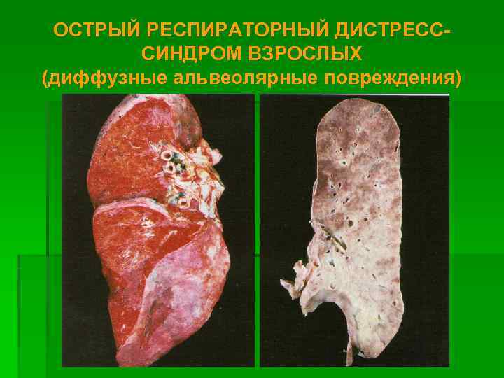 ОСТРЫЙ РЕСПИРАТОРНЫЙ ДИСТРЕСС-   СИНДРОМ ВЗРОСЛЫХ (диффузные альвеолярные повреждения)