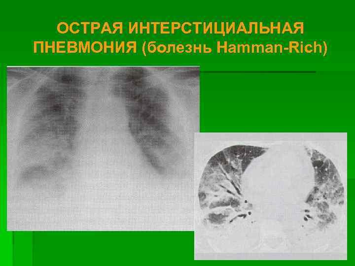 ОСТРАЯ ИНТЕРСТИЦИАЛЬНАЯ ПНЕВМОНИЯ (болезнь Hamman-Rich)