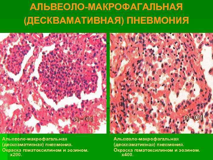 АЛЬВЕОЛО-МАКРОФАГАЛЬНАЯ   (ДЕСКВАМАТИВНАЯ) ПНЕВМОНИЯ Альвеоло-макрофагальная (десквамативная) пневмония.  Окраска гематоксилином