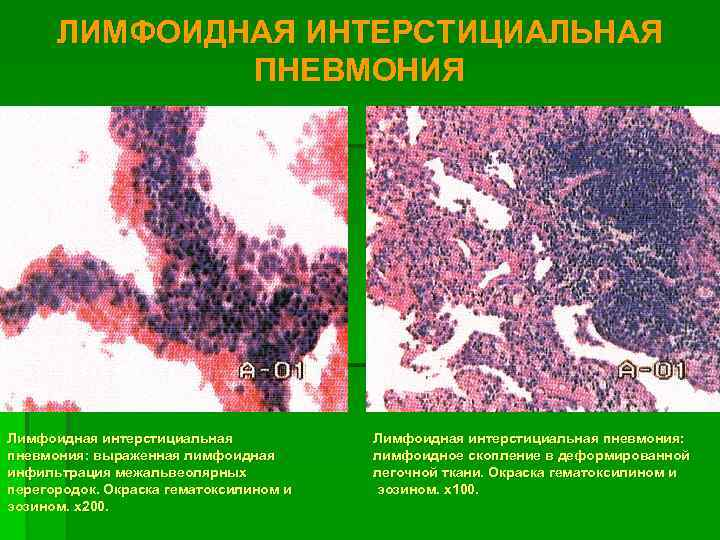 ЛИМФОИДНАЯ ИНТЕРСТИЦИАЛЬНАЯ    ПНЕВМОНИЯ Лимфоидная интерстициальная пневмония: выраженная лимфоидная