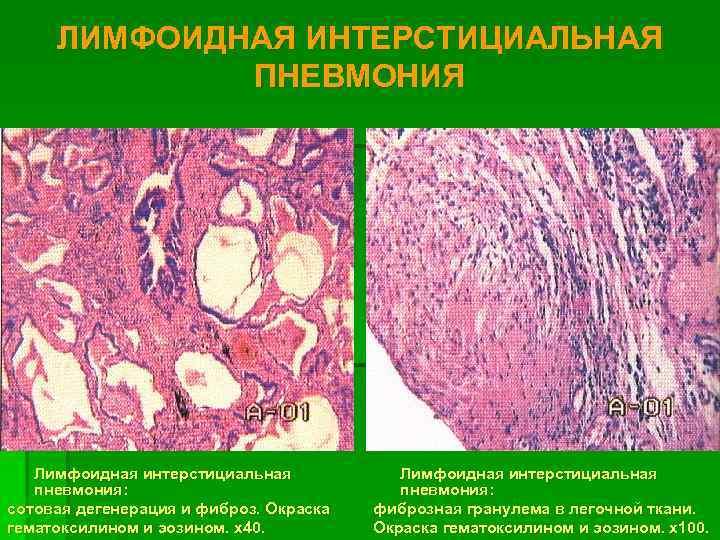 ЛИМФОИДНАЯ ИНТЕРСТИЦИАЛЬНАЯ    ПНЕВМОНИЯ  Лимфоидная интерстициальная  пневмония: