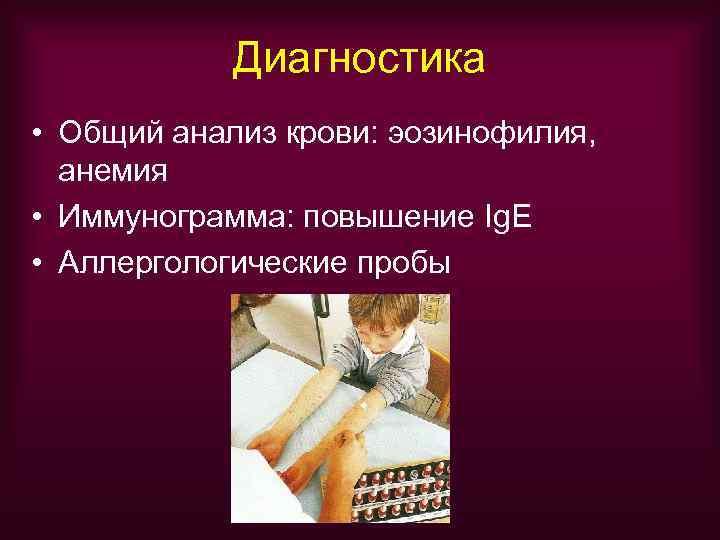 Диагностика • Общий анализ крови: эозинофилия,  анемия • Иммунограмма: повышение Ig.