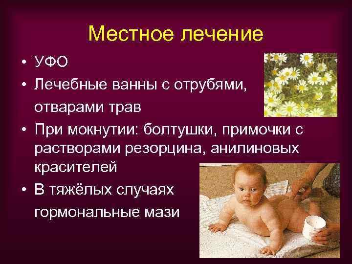 Местное лечение • УФО • Лечебные ванны с отрубями,  отварами трав