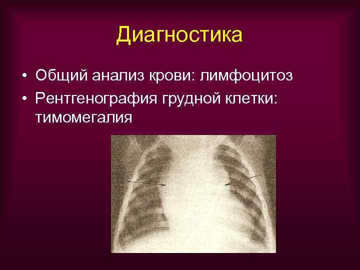 Диагностика • Общий анализ крови: лимфоцитоз • Рентгенография грудной клетки:  тимомегалия