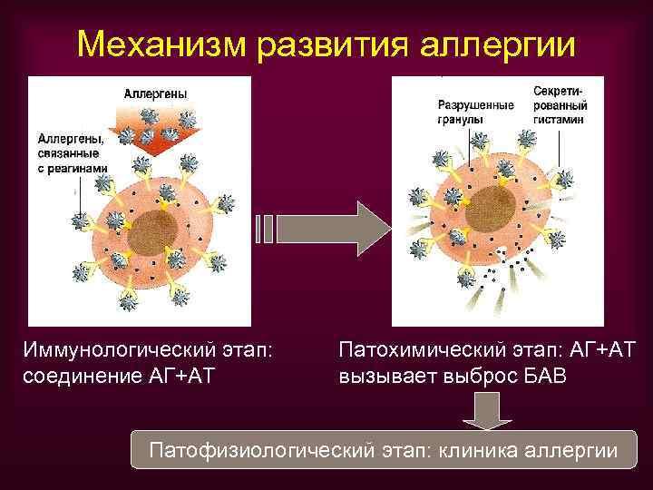 Механизм развития аллергии Иммунологический этап: Патохимический этап: АГ+АТ соединение АГ+АТ  вызывает