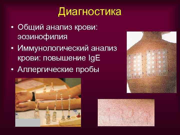 Диагностика • Общий анализ крови:  эозинофилия • Иммунологический анализ  крови: